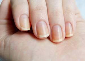 Белые пятна на ногтях пальцев рук