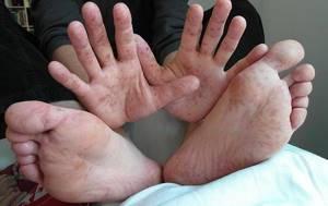 Появились волдыри на ступнях ног: причины и лечение, водянистые волдыри у ребенка