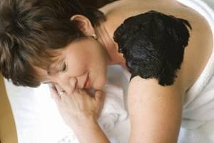 Лечение псориаза в санаториях