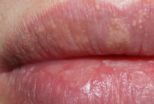 Пятна на губах под кожей