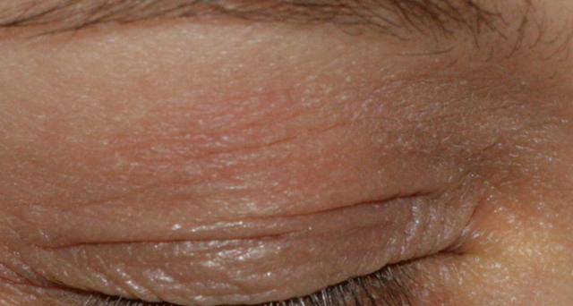 Нейродермит на голове, лице, руках и ногах