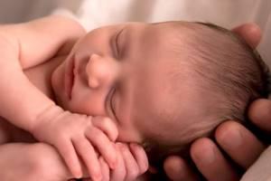 Пятна на коже новорожденного