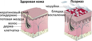 На теле шелушение и пятно