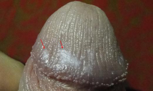 Белые пятна на головке члена