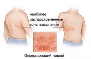Красное пятно на коже чешется и шелушится