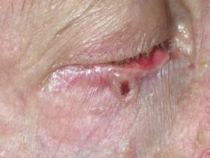 Серые пятна на коже, шее или глазах