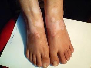Пятна на ногах при диабете