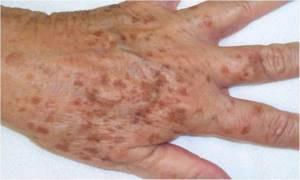 Шелушение и сухость кожи (ксероз): как лечить сухость кожи  бальзамом ХРАНИТЕЛЬ