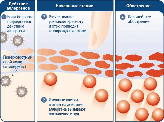 Лечение дерматита в домашних условиях