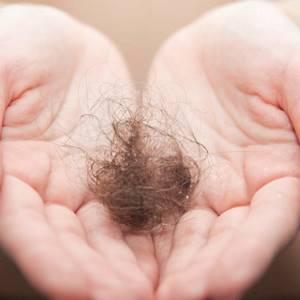 Пятно без волос на голове