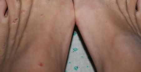 Волдырь на ноге от обуви