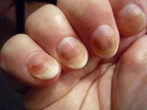 Темные пятна на ногтях рук