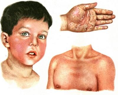 Сыпь при скарлатине. Фото у детей и взрослых