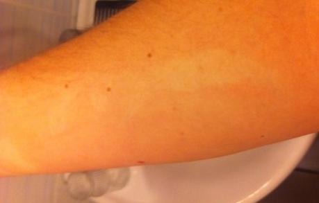Красные и белые пятна с точками на коже
