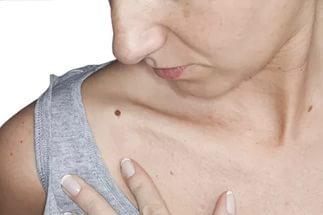 Пятна на коже при раке