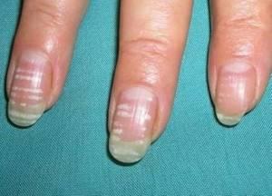 Что означают белые пятна на ногтях?