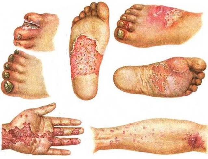 Паховый дерматомикоз. Фото, симптомы, лечение