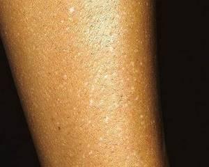 Оранжевые пятна на коже