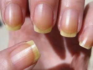 Коричневые пятна на ногтях рук и ног