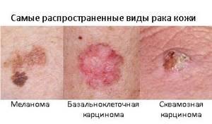 Пятно на носу: красное, пигментное, на кончике носа шелушится