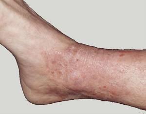 Симптомы нейродермита на руках, ногах, голове, лица: симптомы (признаки) и лечение