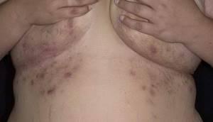 Розовые пятна на ноге, руке, шее, щеке, животе, спине, под грудью