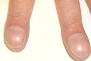 Красные пятна на ногтях