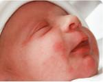Токсическая эритема новорожденных