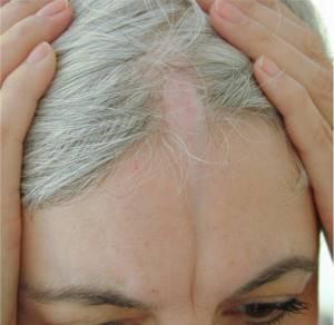 Локализованная склеродермия – линейная, бляшечная, очаговая