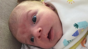 Пятно на лбу у новорожденного