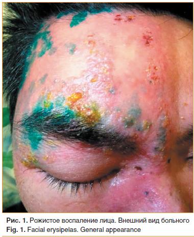 Рожа на лице: причины, симптомы, лечение