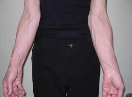 Пятна на венах ног и рук