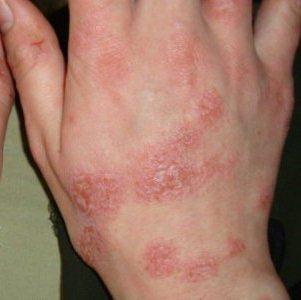 Красные пятна с уплотнением на ногах и других частях тела