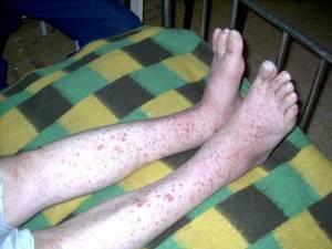 Аллергические пятна на теле