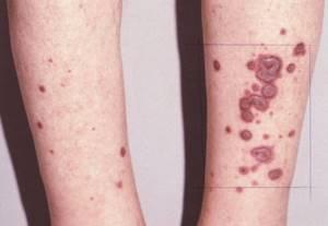 Многоформная экссудативная эритема: фото, причины, симптомы, лечение