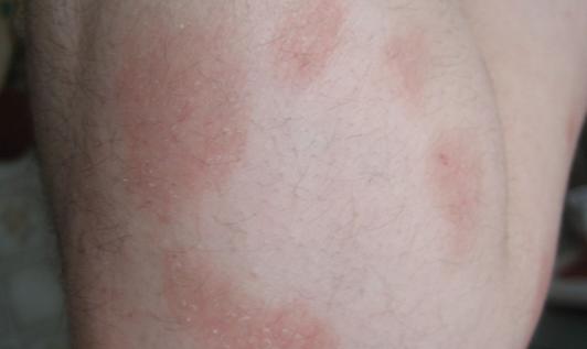 Шероховатое пятно на коже