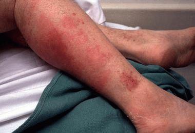 Красные пятна на ногах ниже колена