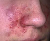 Кожный дерматит - причины, симптомы, лечение