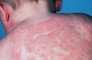 Как вылечить дерматит у детей