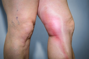 Пятна на ногах при варикозе: красные, тёмные, коричневые