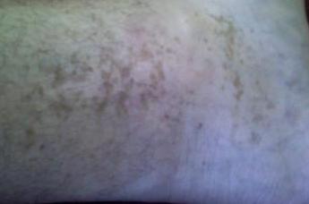 Темные пятна на коже человека: на теле, ногах, руках, между ног