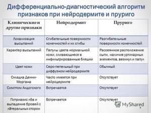 Причины возникновения нейродермита, психосоматика, заразность