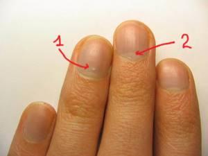 Почему на ногтях появляются белые пятна?