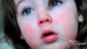 Осложнения скарлатины у детей