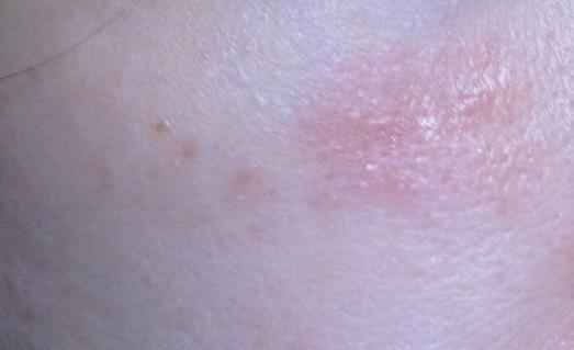 Шершавое пятно на коже: на теле, на ногах, у ребенка