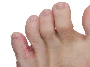Пятна на подошве ног. Как выглядят? Почему появляются? Как лечить?