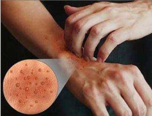 Эффективные и народные средства от дерматита