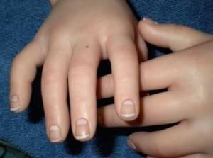 Пятно на безымянном пальце