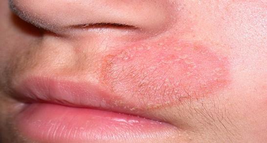 Пятна с шелушением на коже