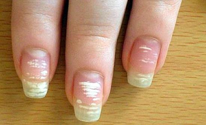 Белые пятна на ногтях пальцев рук - причины